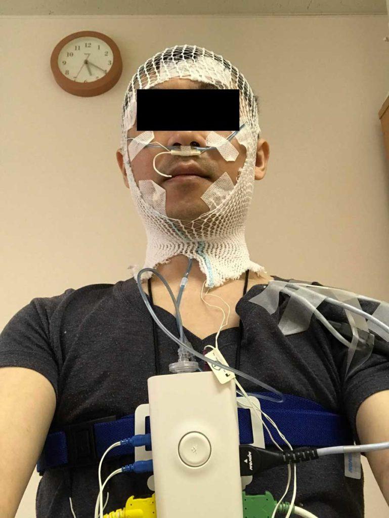 無呼吸症候群の検査入院 衝撃の写真